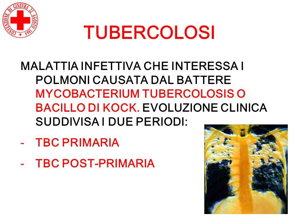 TUBERCOLOSI MALATTIA INFETTIVA CHE INTERESSA I POLMONI CAUSATA DAL BATTERE MYCOBACTERIUM TUBERCOLOSIS O BACILLO DI KOCK. EVOLUZIONE CLINICA SUDDIVISA