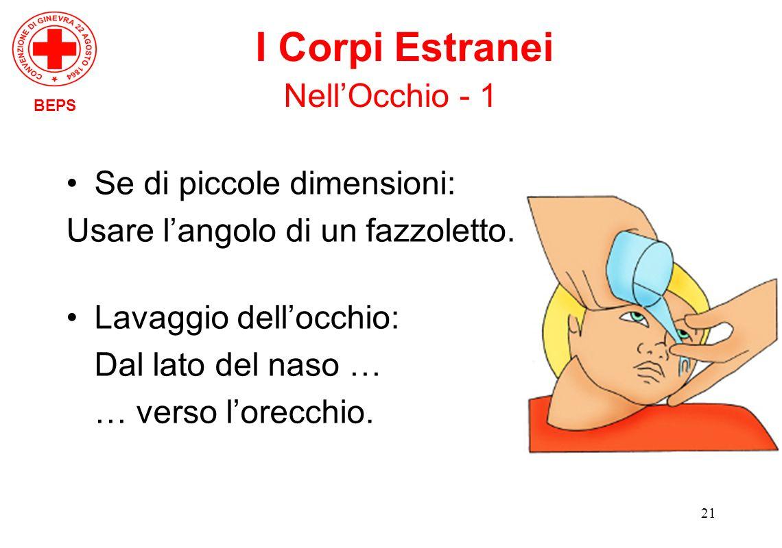 21 Se di piccole dimensioni: Usare langolo di un fazzoletto. Lavaggio dellocchio: Dal lato del naso … … verso lorecchio. BEPS I Corpi Estranei NellOcc