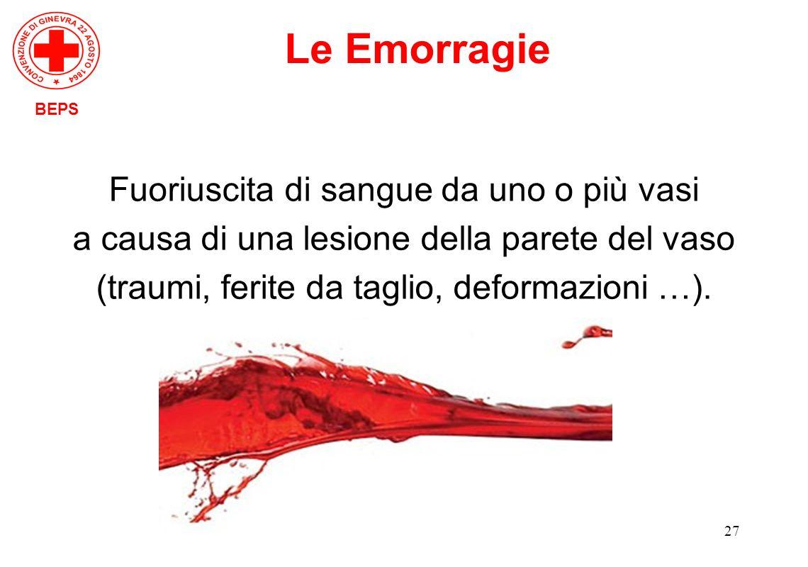 27 Fuoriuscita di sangue da uno o più vasi a causa di una lesione della parete del vaso (traumi, ferite da taglio, deformazioni …). BEPS Le Emorragie