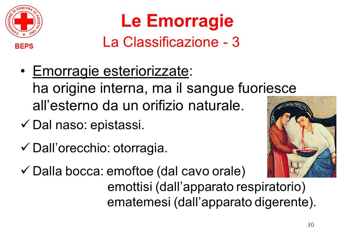 30 BEPS Le Emorragie La Classificazione - 3 Emorragie esteriorizzate: ha origine interna, ma il sangue fuoriesce allesterno da un orifizio naturale. D