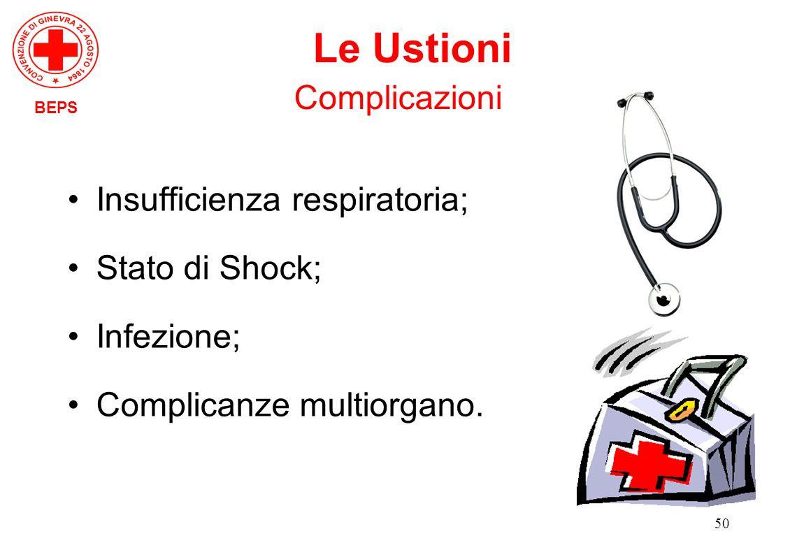 50 Insufficienza respiratoria; Stato di Shock; Infezione; Complicanze multiorgano. BEPS Le Ustioni Complicazioni