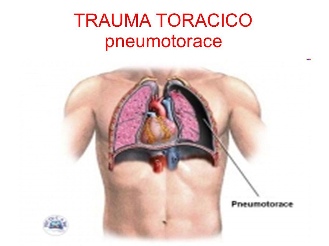 TRAUMA TORACICO pneumotorace