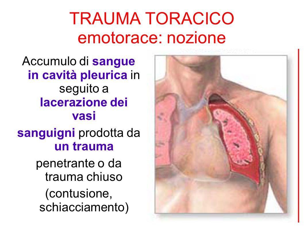 TRAUMA TORACICO emotorace: nozione Accumulo di sangue in cavità pleurica in seguito a lacerazione dei vasi sanguigni prodotta da un trauma penetrante
