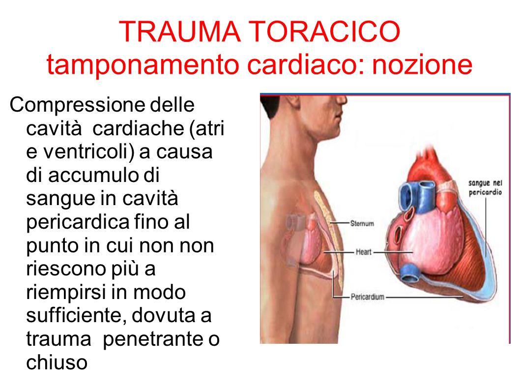 TRAUMA TORACICO tamponamento cardiaco: nozione Compressione delle cavità cardiache (atri e ventricoli) a causa di accumulo di sangue in cavità pericar