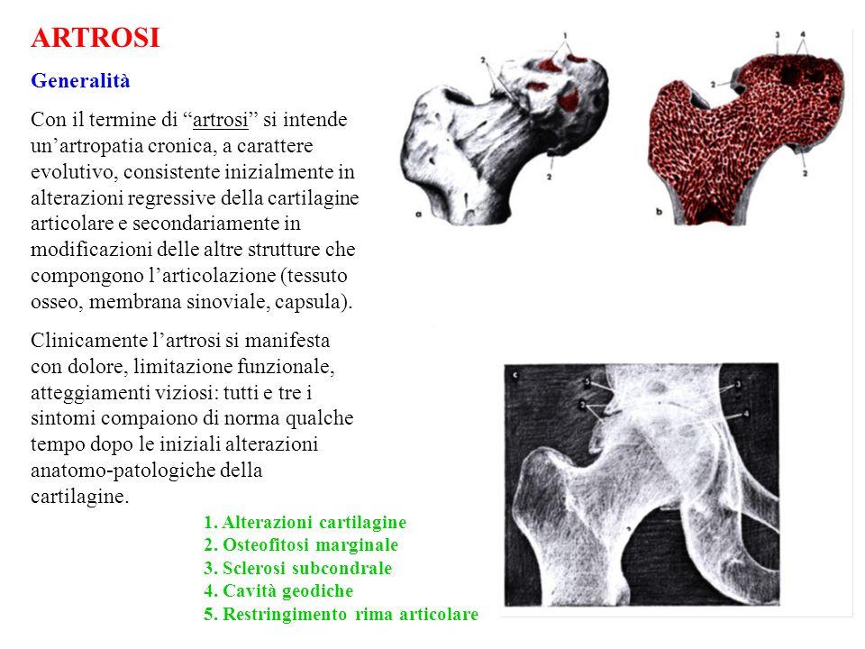 -alterazioni cartilaginee: sono distribuite a chiazze sulla cartilagine di rivestimento; consistono in modificazioni del colorito (giallastro), in assottigliamento e fissurazioni; laddove maggiore è il sovraccarico la cartilagine può ulcerarsi mettendo a nudo losso subcondrale; -osteofiti marginali: sono rappresentati da cercini ossei a becco, a rostro, etc., neoformatisi (per ossificazione della cartilagine o delle inserzioni capsulari) in corrispondenza del margine periferico delle superfici articolari; -osteosclerosi subcondrale: consiste in addensamento del tessuto osseo in corrispondenza delle zone di maggiore usura della cartilagine, laddove il carico è più accentuato; queste zone si alternano a zone di rarefazione che confluendo possono dare origine a cavità pseudocistiche; -cavità pseudocistiche o geodi: sono piccole cavità (da un grano di riso a un chicco di uva) presenti nello spessore delle zone osteosclerotiche (quindi nelle zone di maggior carico funzionale), contenenti un liquido mucoide, frammenti cartilaginei, trabecole necrotiche, etc., -alterazioni della membrana sinoviale: iperemia, ipertrofia ed ispessimento dei villi che presentano frange esuberanti, etc., -alterazioni della capsula, consistenti in edema, ispessimento, fibrosclerosi.