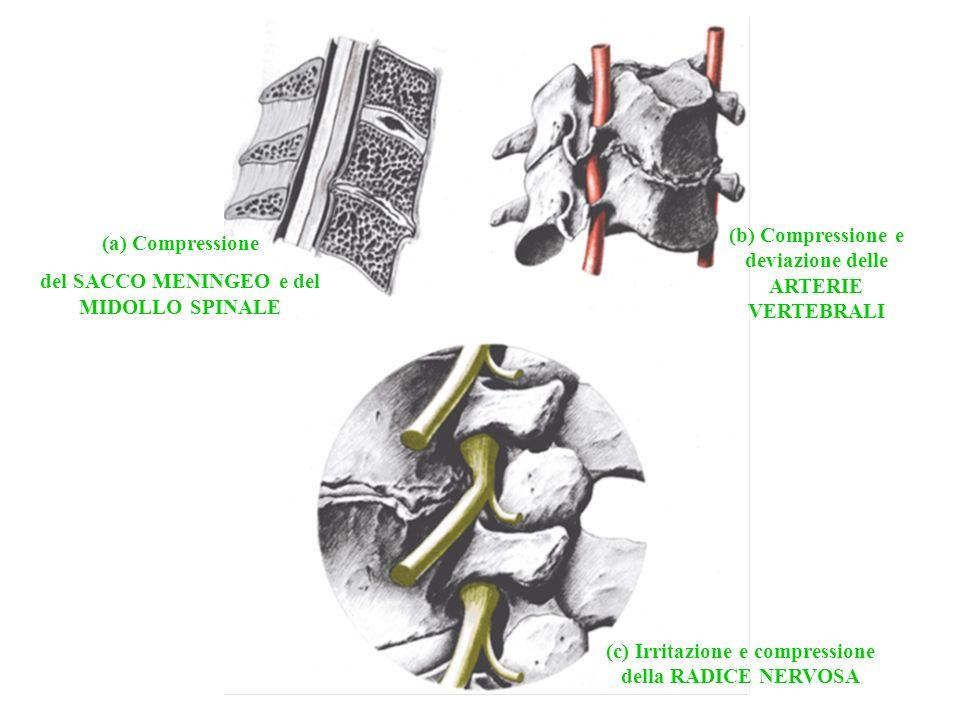 (a) Compressione del SACCO MENINGEO e del MIDOLLO SPINALE (b) Compressione e deviazione delle ARTERIE VERTEBRALI (c) Irritazione e compressione della