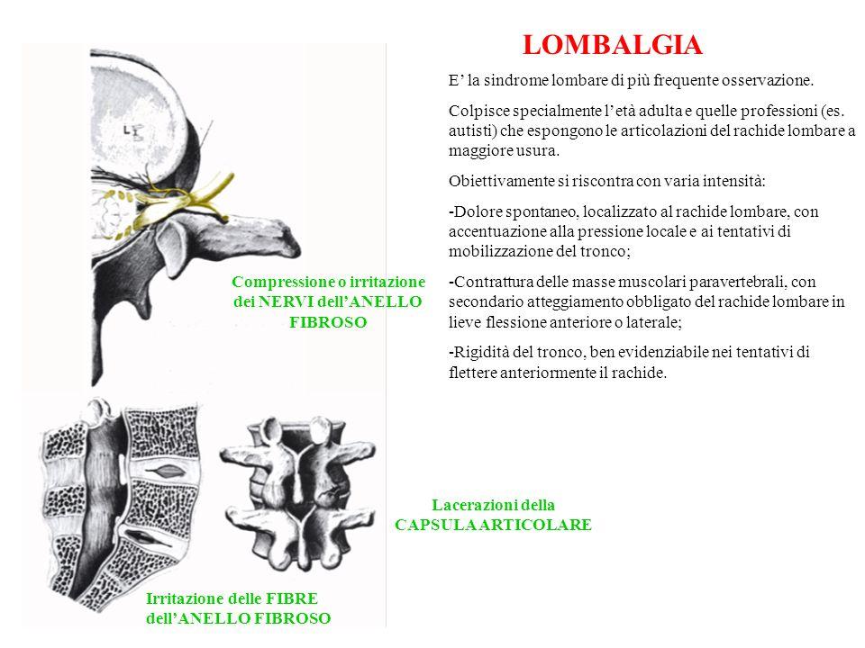 LOMBALGIA Compressione o irritazione dei NERVI dellANELLO FIBROSO Irritazione delle FIBRE dellANELLO FIBROSO Lacerazioni della CAPSULA ARTICOLARE E la