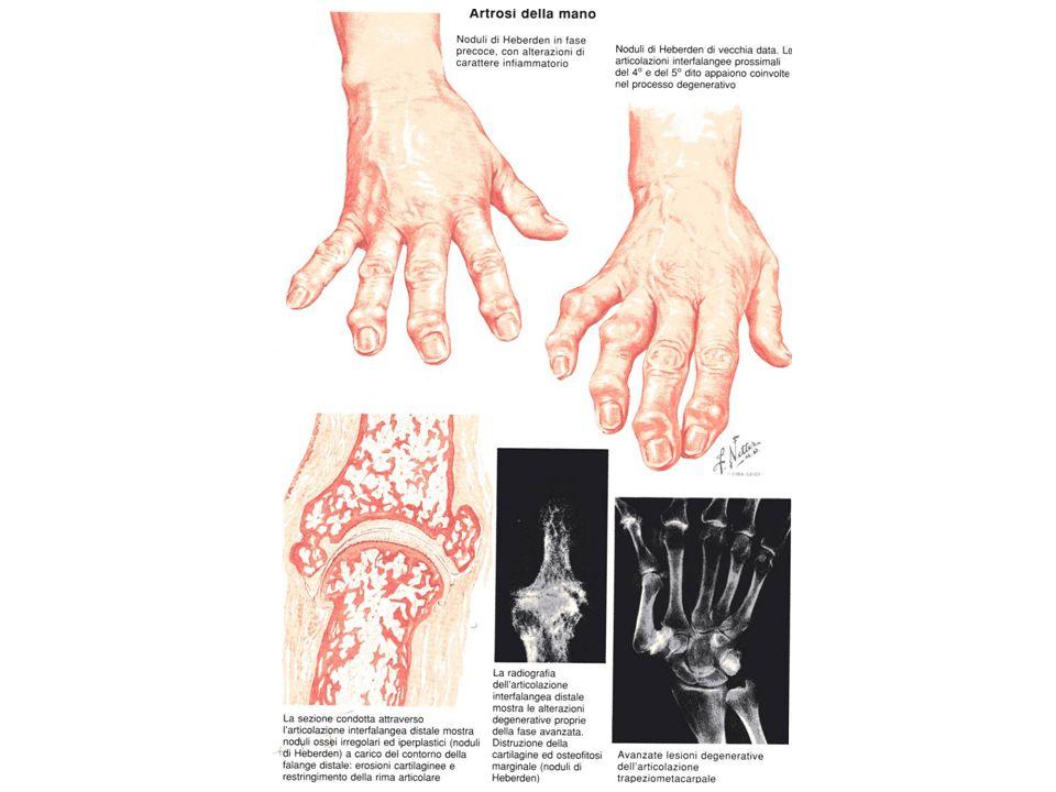 ARTROSI DELLANCA O COXARTROSI E molto frequente (1% dei soggetti adulti).