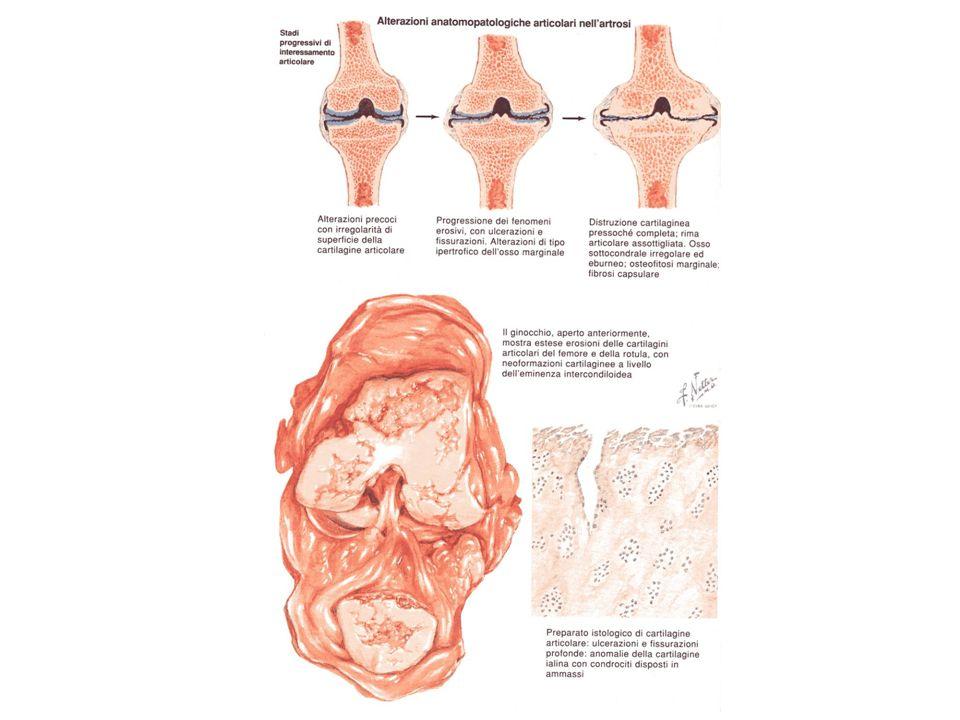 ARTROSI VERTEBRALE - cervicale - dorsale - lombare SINTOMATOLOGIA Tutte le forme presentano una identica sintomatologia locale: dolore e rigidità articolare, spesso accompagnata da contratture muscolari e riduzione della normale lordosi cervicale o lombare.