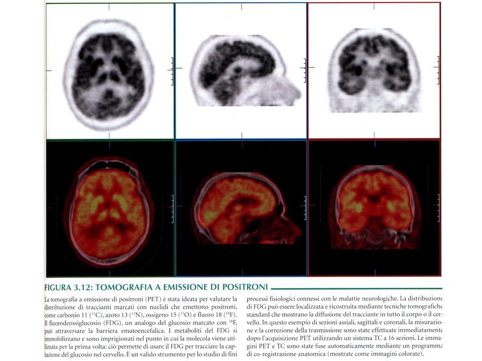 Suddivisione territoriale della faccia mediale dellemisfero telencefalico destro nei diversi lobi e circonvoluzioni.