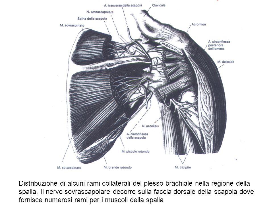 Distribuzione di alcuni rami collaterali del plesso brachiale nella regione della spalla. Il nervo sovrascapolare decorre sulla faccia dorsale della s