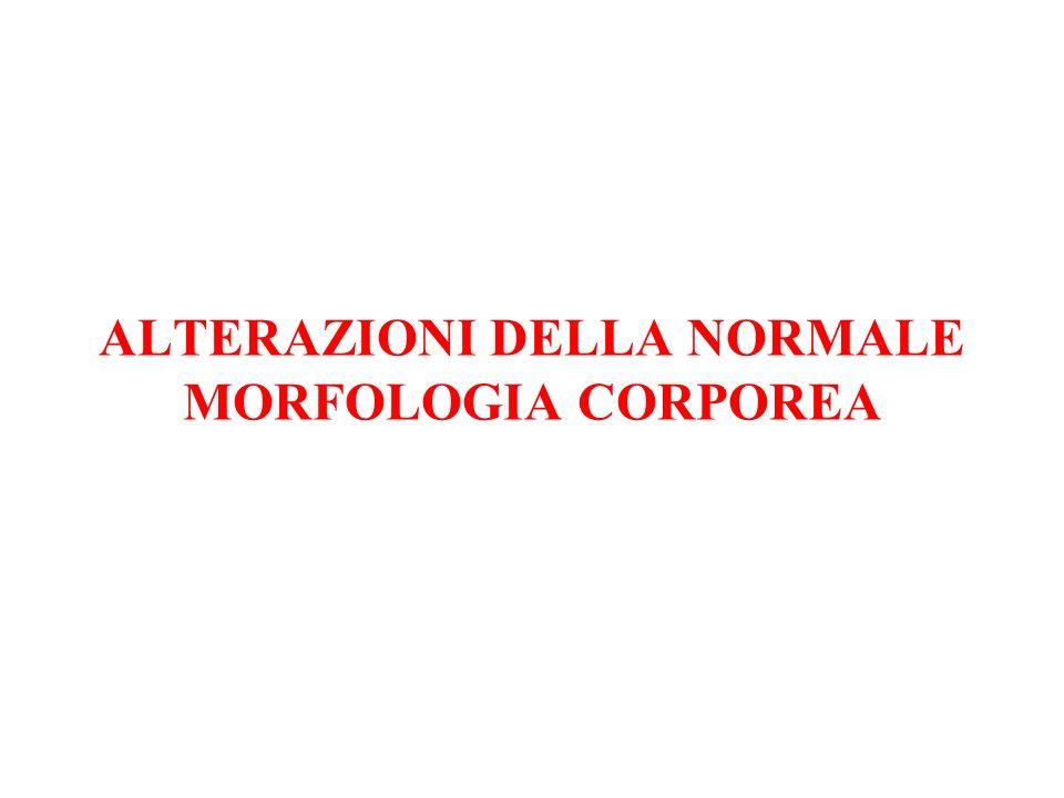 ALTERAZIONI DELLA NORMALE MORFOLOGIA CORPOREA