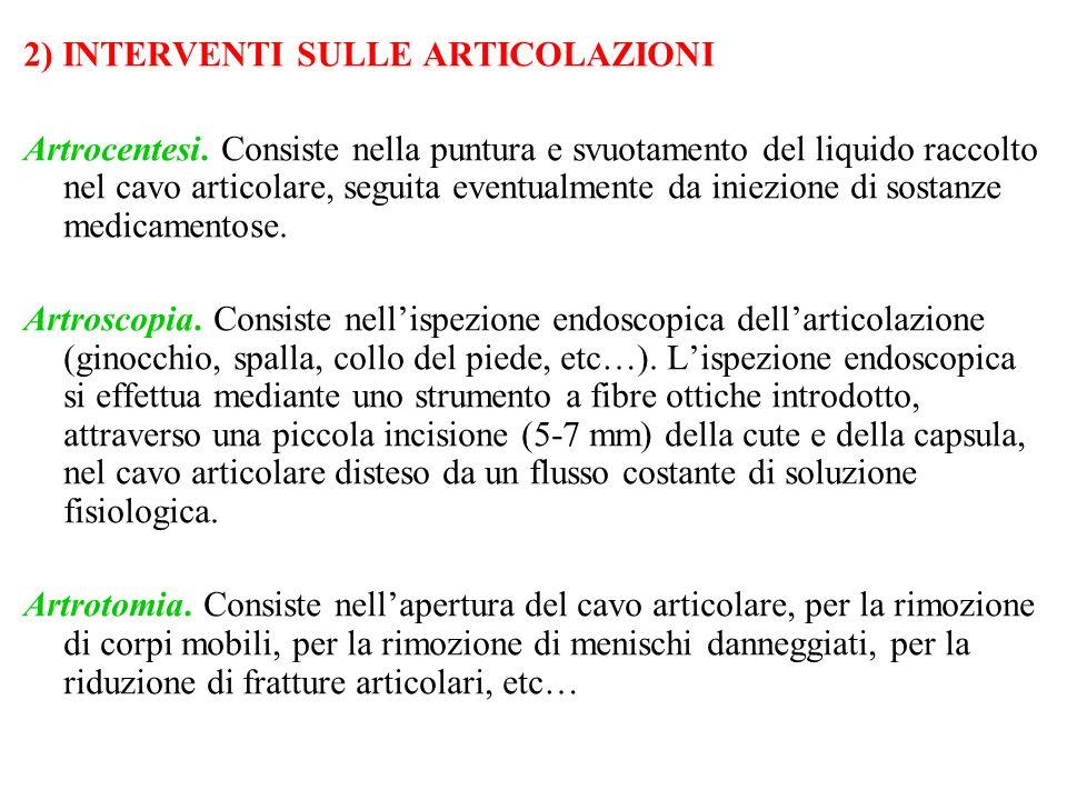 2) INTERVENTI SULLE ARTICOLAZIONI Artrocentesi. Consiste nella puntura e svuotamento del liquido raccolto nel cavo articolare, seguita eventualmente d