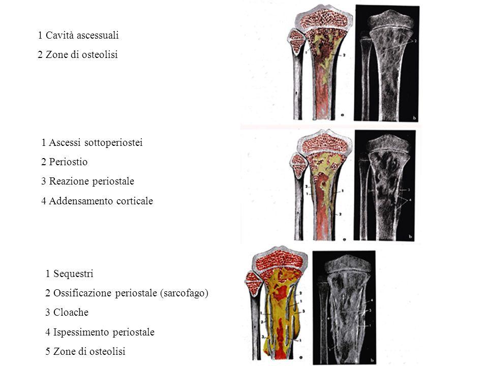1 Cavità ascessuali 2 Zone di osteolisi 1 Ascessi sottoperiostei 2 Periostio 3 Reazione periostale 4 Addensamento corticale 1 Sequestri 2 Ossificazione periostale (sarcofago) 3 Cloache 4 Ispessimento periostale 5 Zone di osteolisi