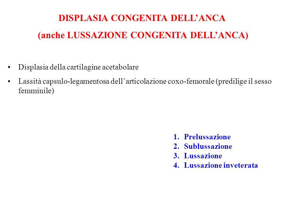 DISPLASIA CONGENITA DELLANCA (anche LUSSAZIONE CONGENITA DELLANCA) Displasia della cartilagine acetabolare Lassità capsulo-legamentosa dellarticolazio