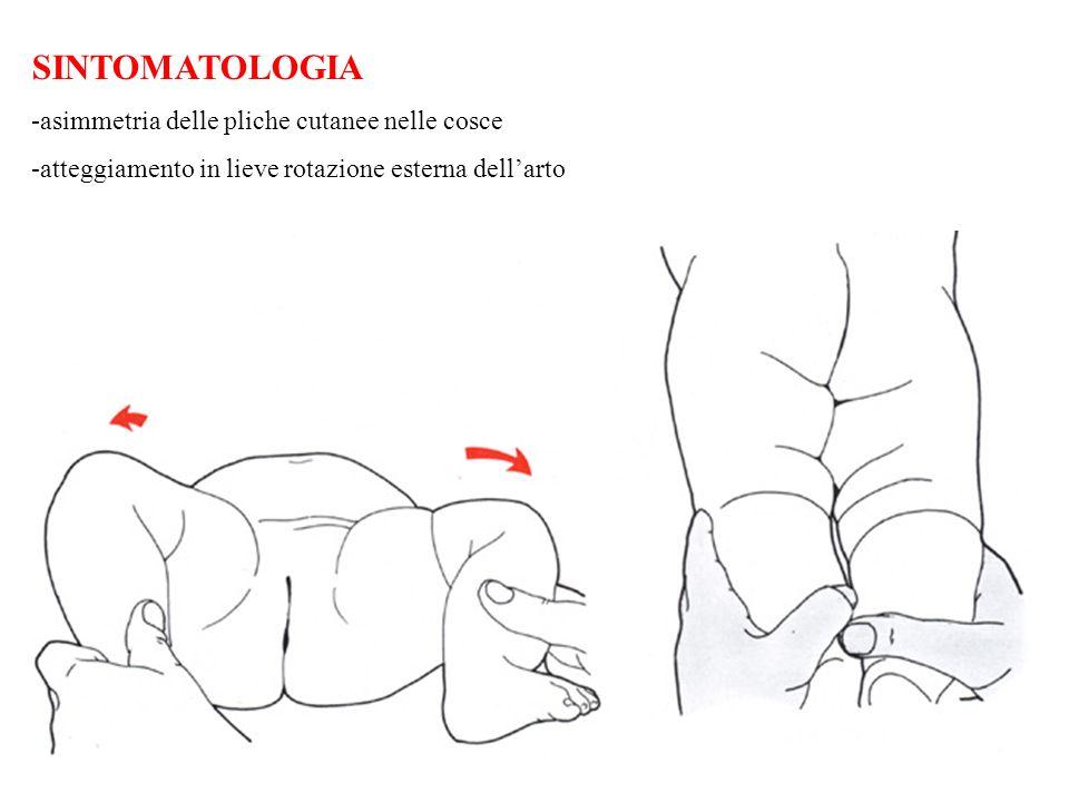 SINTOMATOLOGIA -asimmetria delle pliche cutanee nelle cosce -atteggiamento in lieve rotazione esterna dellarto