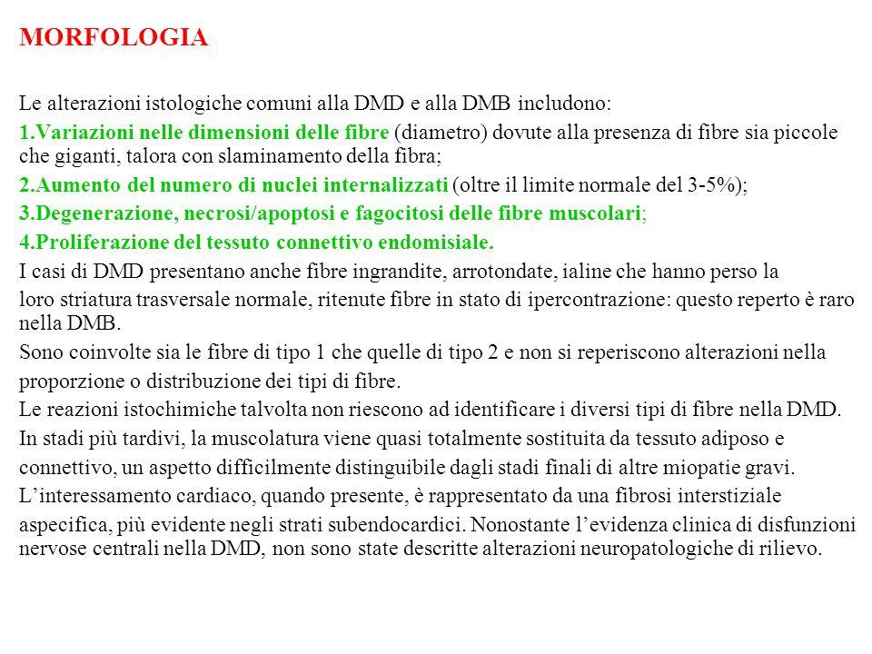 MORFOLOGIA Le alterazioni istologiche comuni alla DMD e alla DMB includono: 1.Variazioni nelle dimensioni delle fibre (diametro) dovute alla presenza