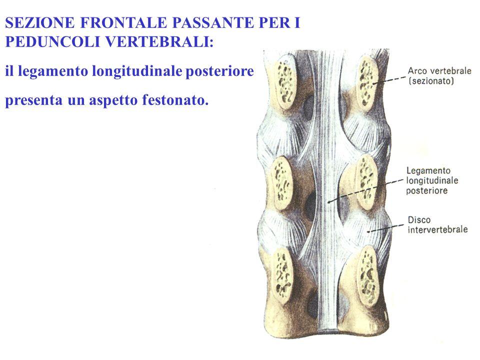 SEZIONE FRONTALE PASSANTE PER I PEDUNCOLI VERTEBRALI: il legamento longitudinale posteriore presenta un aspetto festonato.