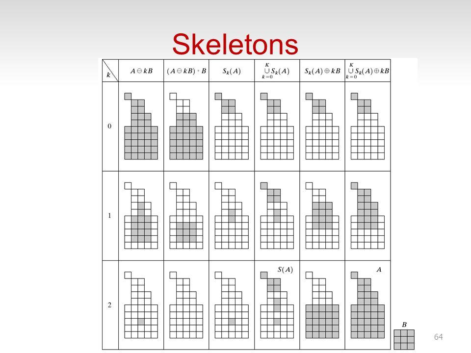 Skeletons 64