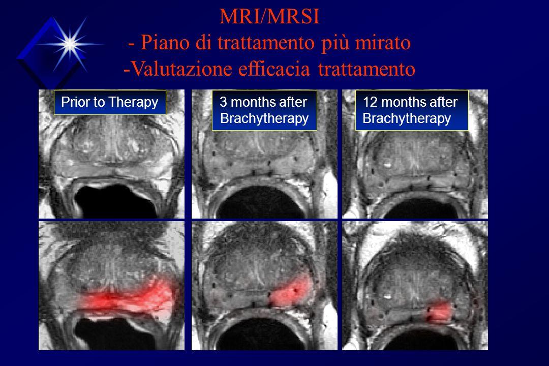 Prior to Therapy 3 months after Brachytherapy 12 months after Brachytherapy MRI/MRSI - Piano di trattamento più mirato -Valutazione efficacia trattame