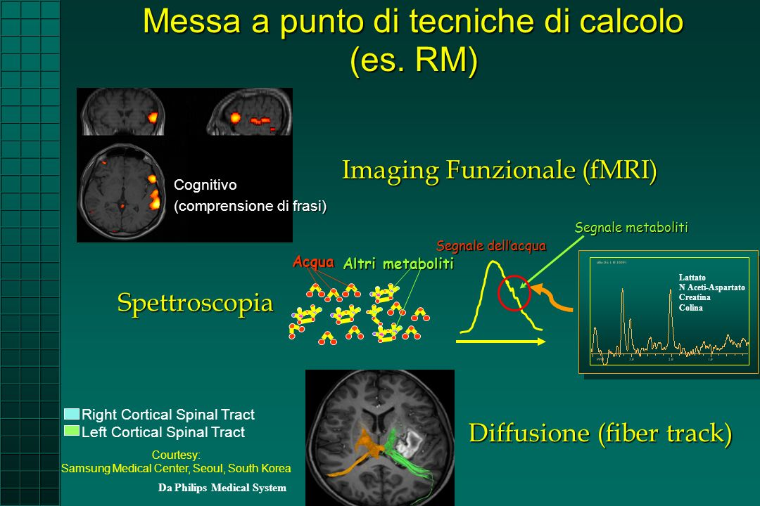 Imaging Funzionale (fMRI) Cognitivo (comprensione di frasi) Courtesy: Samsung Medical Center, Seoul, South Korea Right Cortical Spinal Tract Left Cort