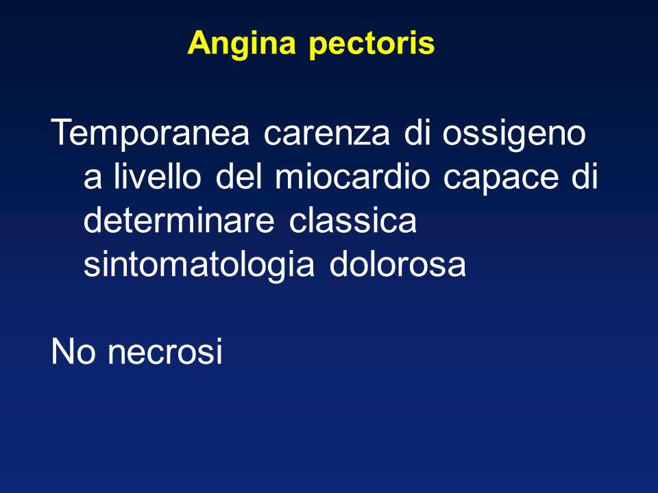 Angina pectoris Temporanea carenza di ossigeno a livello del miocardio capace di determinare classica sintomatologia dolorosa No necrosi