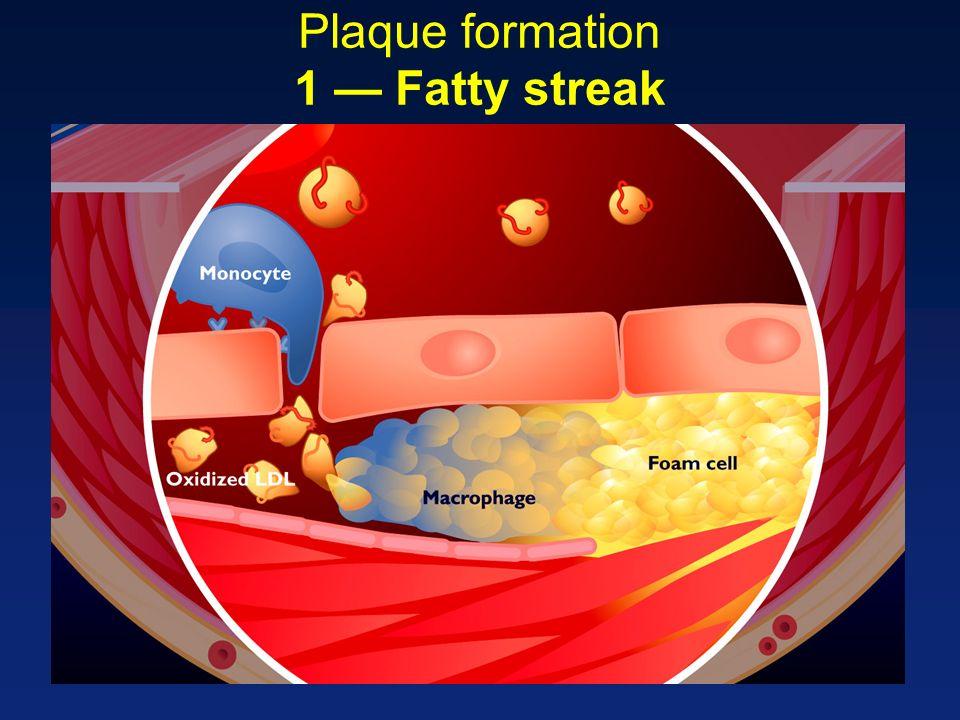 Plaque formation 1 Fatty streak