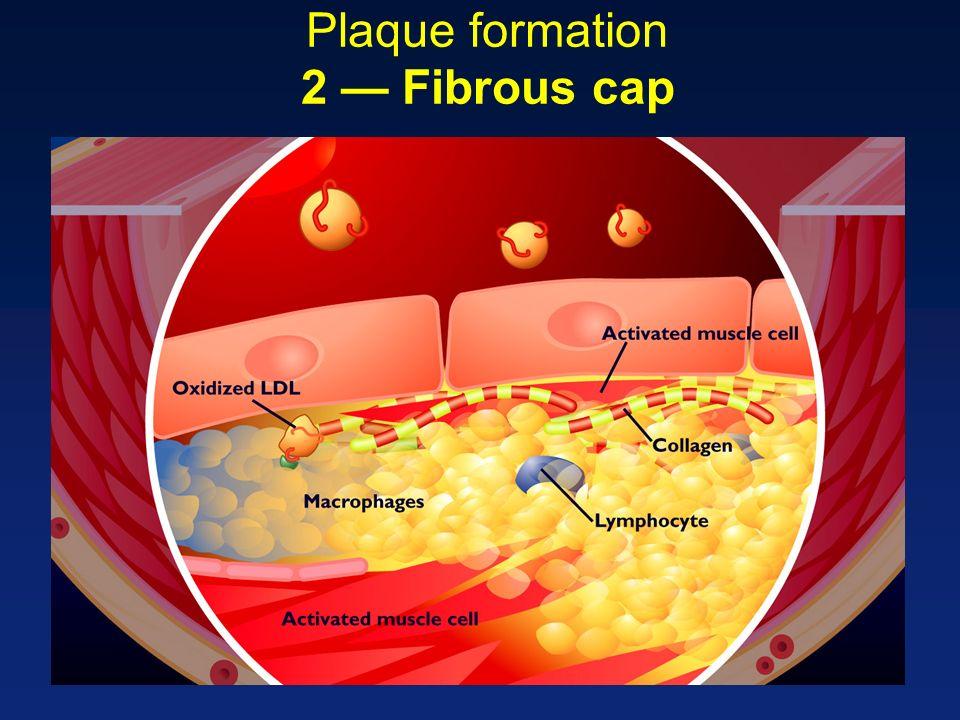 Plaque formation 2 Fibrous cap