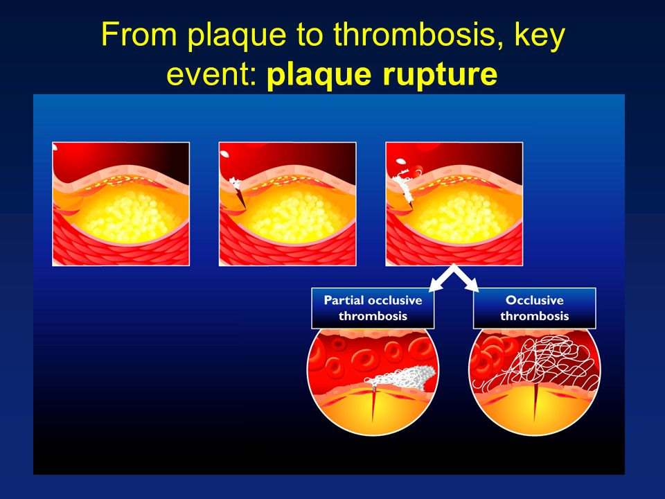 From plaque to thrombosis, key event: plaque rupture