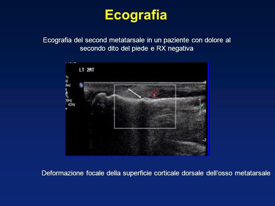 Ecografia Ecografia del second metatarsale in un paziente con dolore al secondo dito del piede e RX negativa Deformazione focale della superficie corticale dorsale dellosso metatarsale