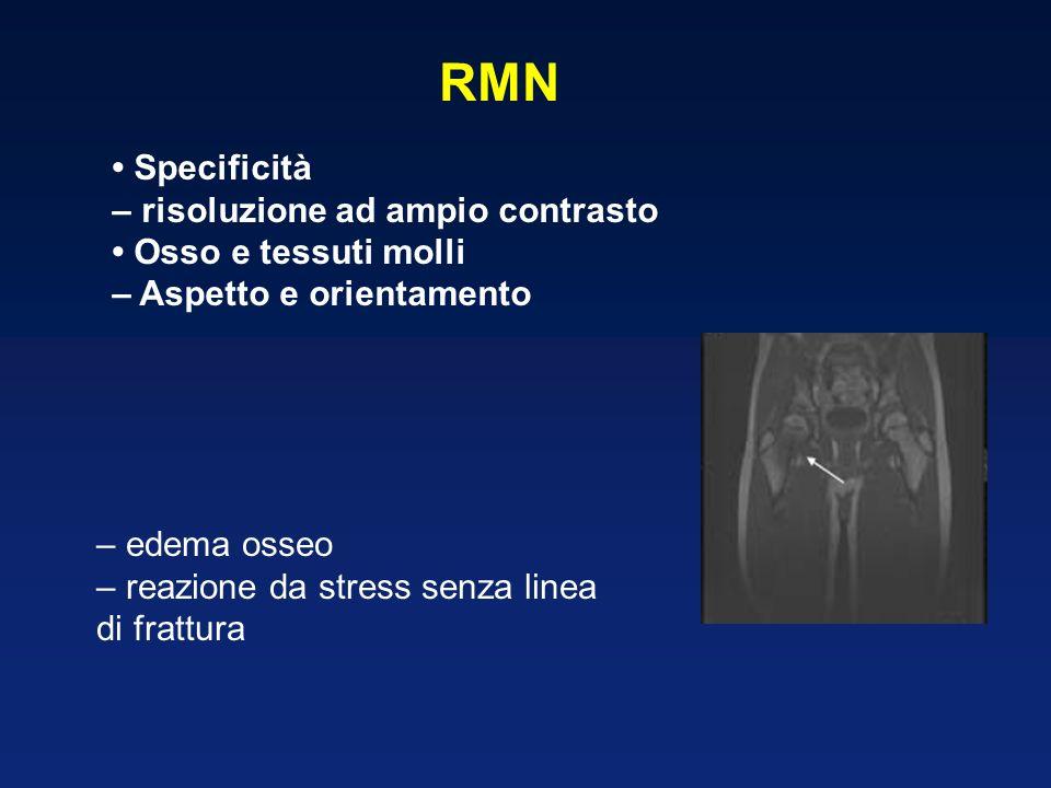 RMN Specificità – risoluzione ad ampio contrasto Osso e tessuti molli – Aspetto e orientamento – edema osseo – reazione da stress senza linea di frattura