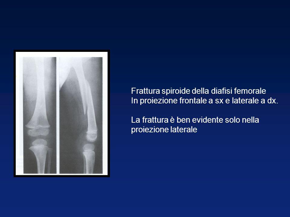 Frattura spiroide della diafisi femorale In proiezione frontale a sx e laterale a dx.