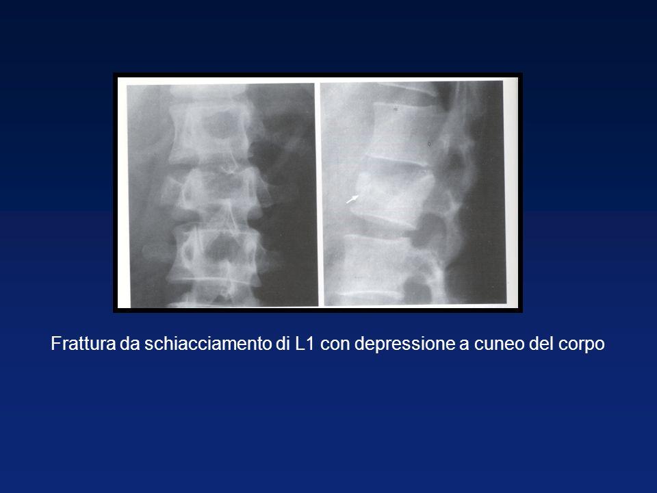 Frattura da schiacciamento di L1 con depressione a cuneo del corpo