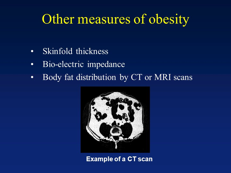Other measures of obesity Skinfold thickness Bio-electric impedance Body fat distribution by CT or MRI scans Example of a CT scan