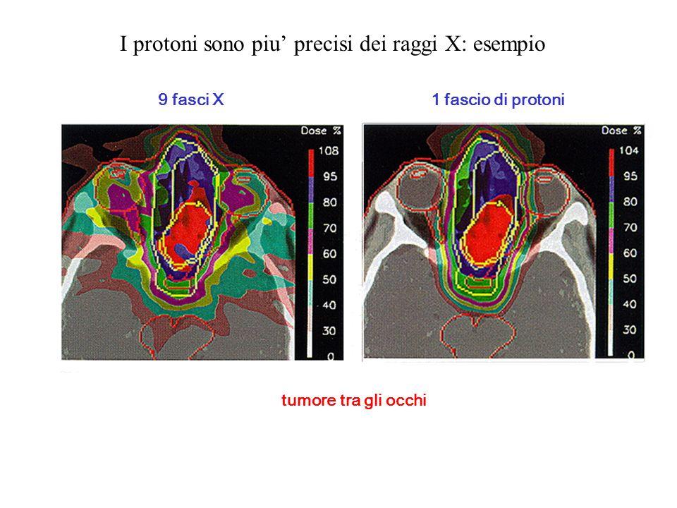 I protoni sono piu precisi dei raggi X: esempio tumore tra gli occhi 9 fasci X 1 fascio di protoni