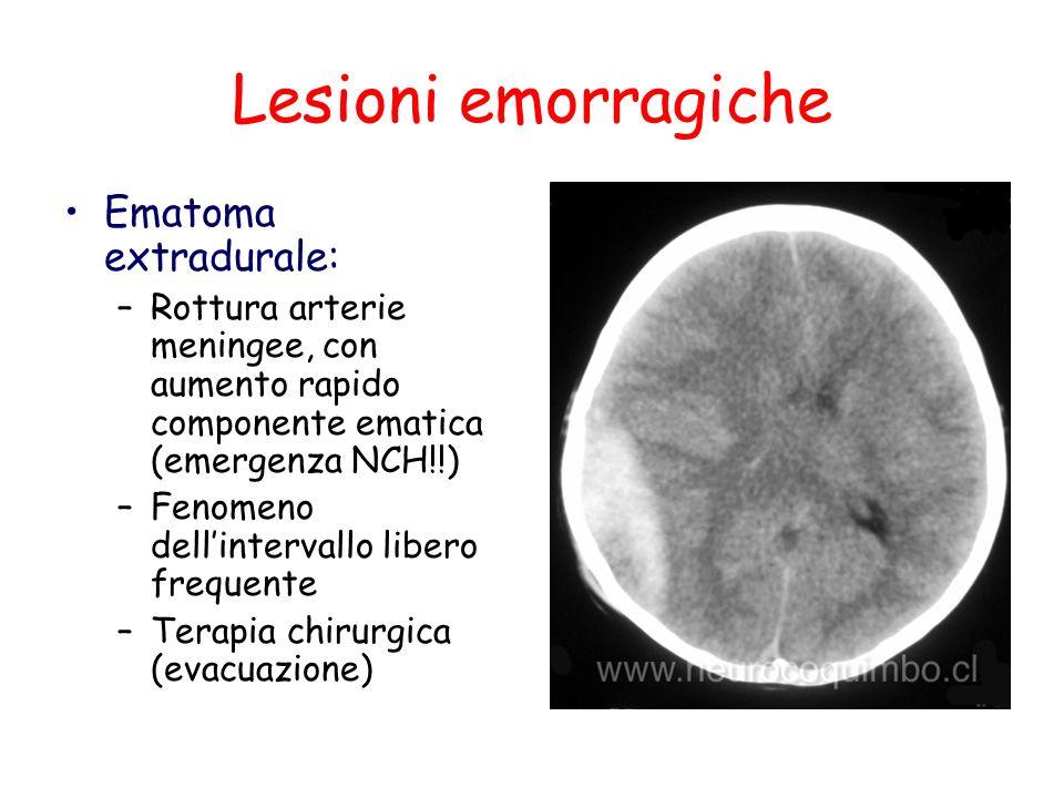 Lesioni emorragiche Ematoma extradurale: –Rottura arterie meningee, con aumento rapido componente ematica (emergenza NCH!!) –Fenomeno dellintervallo l