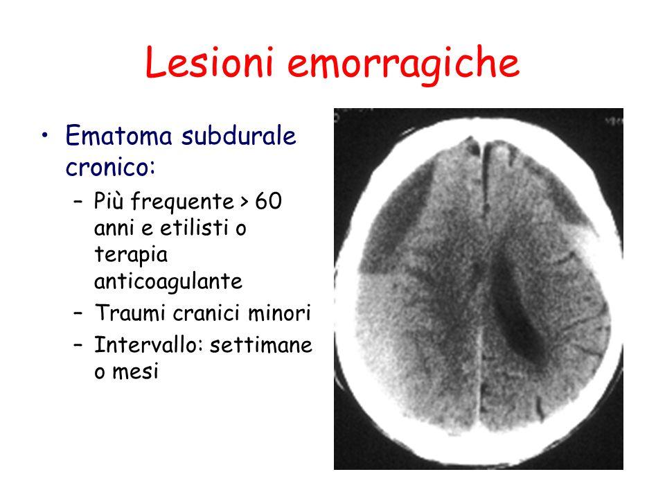 Lesioni emorragiche Ematoma subdurale cronico: –Più frequente > 60 anni e etilisti o terapia anticoagulante –Traumi cranici minori –Intervallo: settim