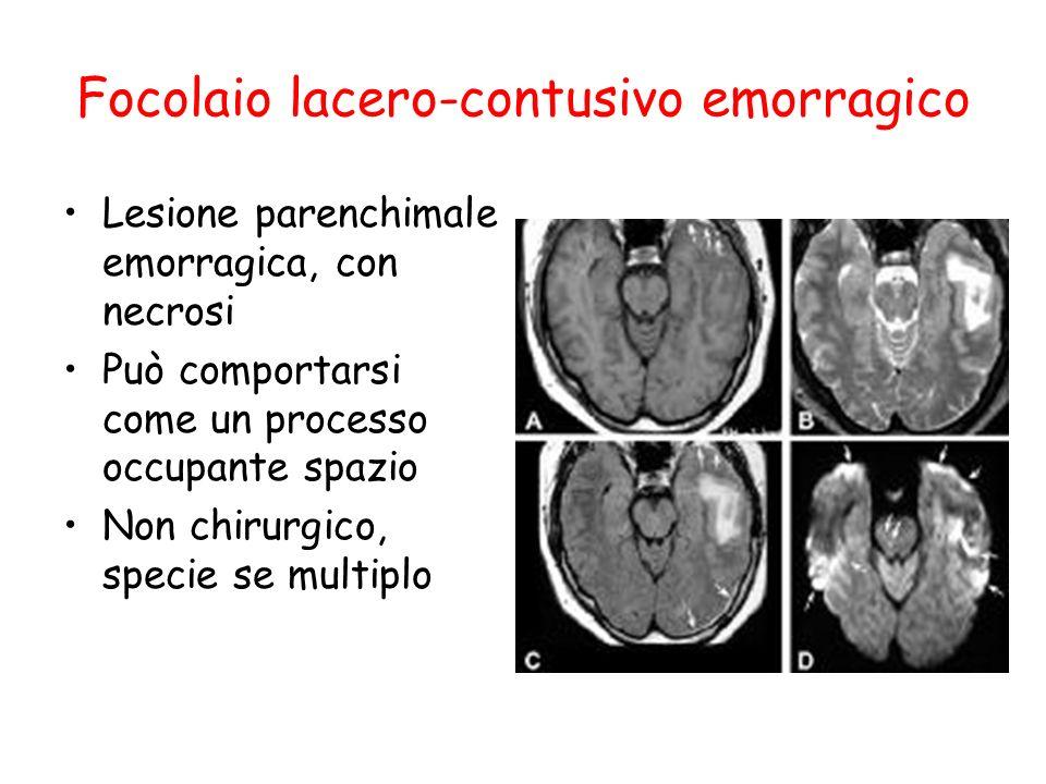 Focolaio lacero-contusivo emorragico Lesione parenchimale emorragica, con necrosi Può comportarsi come un processo occupante spazio Non chirurgico, sp