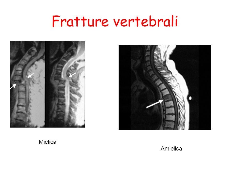 Fratture vertebrali Mielica Amielica