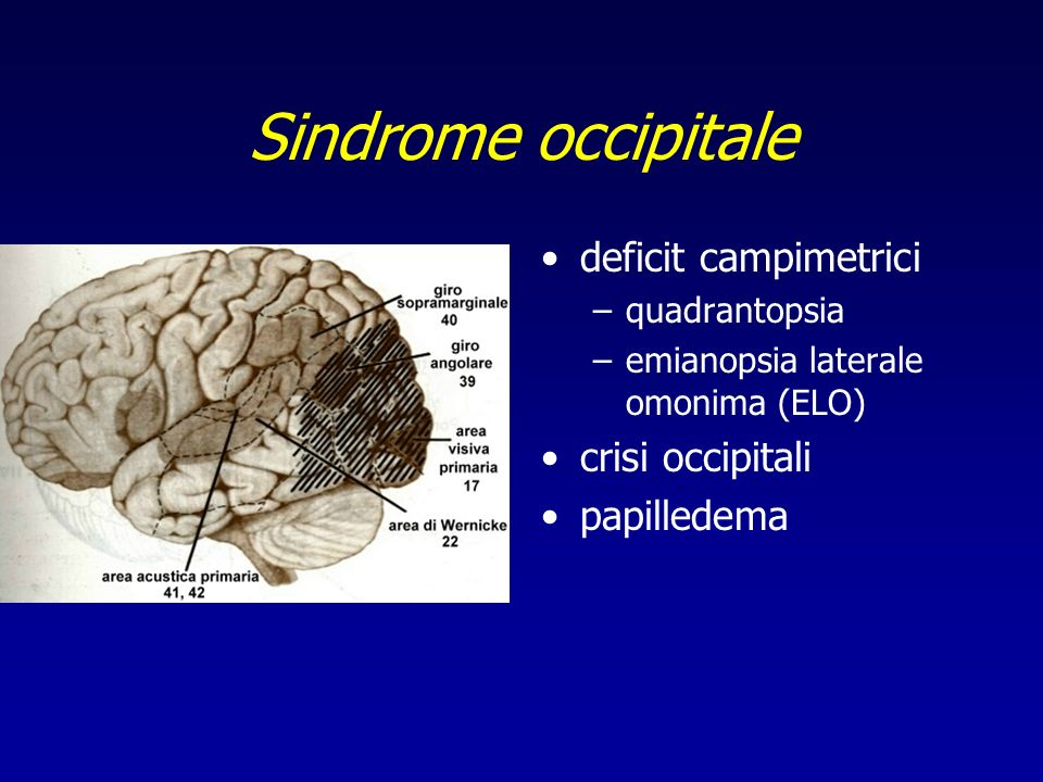 Sindrome occipitale deficit campimetrici –quadrantopsia –emianopsia laterale omonima (ELO) crisi occipitali papilledema