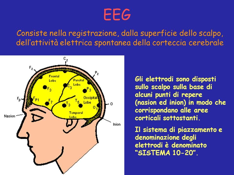EEG Gli elettrodi sono disposti sullo scalpo sulla base di alcuni punti di repere (nasion ed inion) in modo che corrispondano alle aree corticali sott