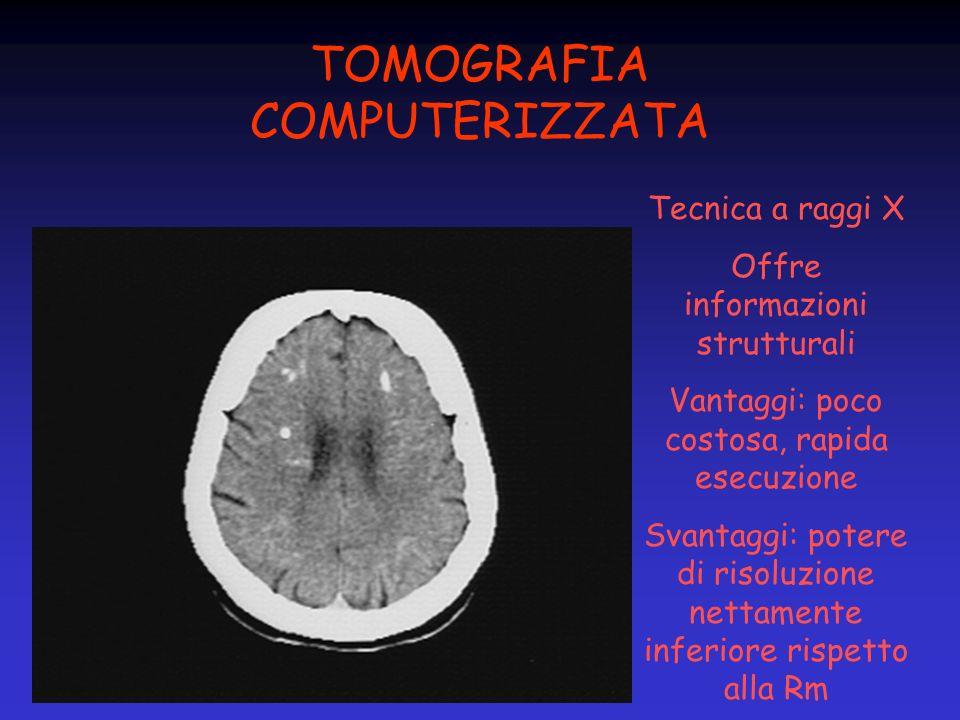 TOMOGRAFIA COMPUTERIZZATA Tecnica a raggi X Offre informazioni strutturali Vantaggi: poco costosa, rapida esecuzione Svantaggi: potere di risoluzione