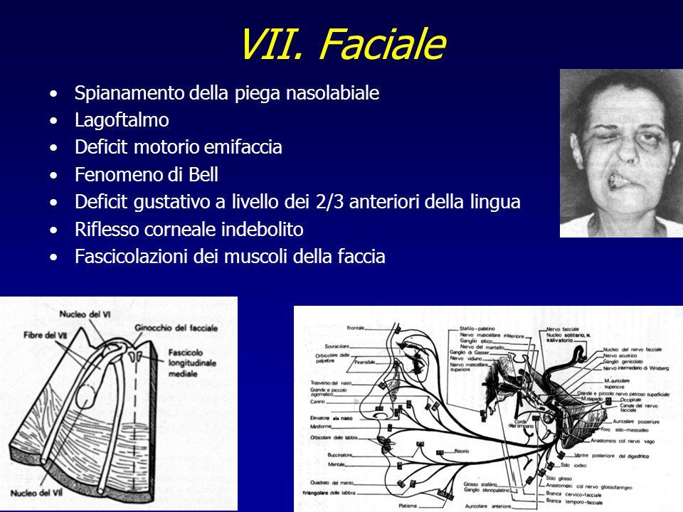 VII. Faciale Spianamento della piega nasolabiale Lagoftalmo Deficit motorio emifaccia Fenomeno di Bell Deficit gustativo a livello dei 2/3 anteriori d