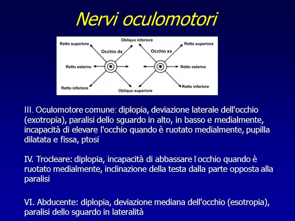 Nervi oculomotori III. Oculomotore comune: diplopia, deviazione laterale dell'occhio (exotropia), paralisi dello sguardo in alto, in basso e medialmen