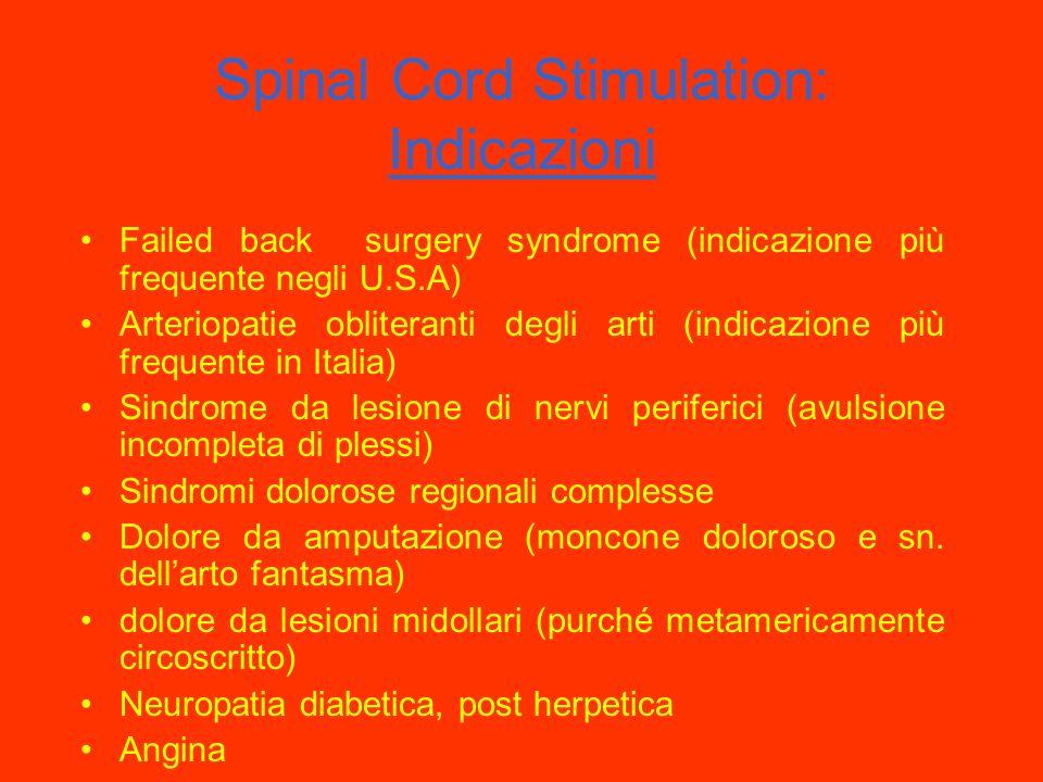 Neuromodulazione con stimolazione elettrica: SCS (Spinal Cord Stimulation) La SCS prevede limpianto di elettrodi nello spazio peridurale Nata come met