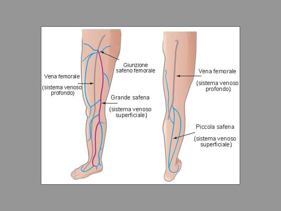 VARICE Alterazione emodinamica che si manifesta con tortuosità ed allungamento di una vena.