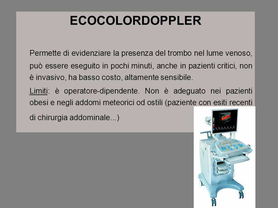 ECOCOLORDOPPLER Permette di evidenziare la presenza del trombo nel lume venoso, può essere eseguito in pochi minuti, anche in pazienti critici, non è