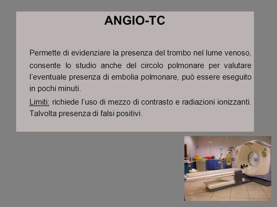 ANGIO-TC Permette di evidenziare la presenza del trombo nel lume venoso, consente lo studio anche del circolo polmonare per valutare leventuale presen