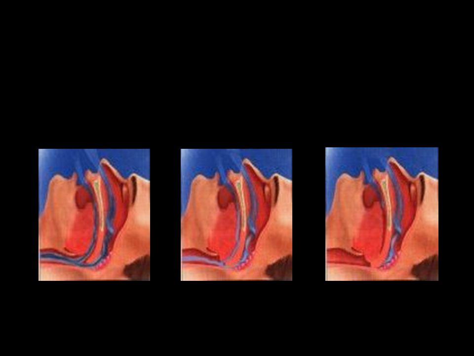 M : F = 8 : 1 Forti russatori, da anni Spesso recente aumento di peso corporeo Russamento intermittente (specie in posizione supina) Inspirazioni profonde e rumorose alternate a silenzio respiratorio di 20- 30 secondi Ripresa della respirazione esplosiva, associata a gemiti, vocalizzi, movimenti