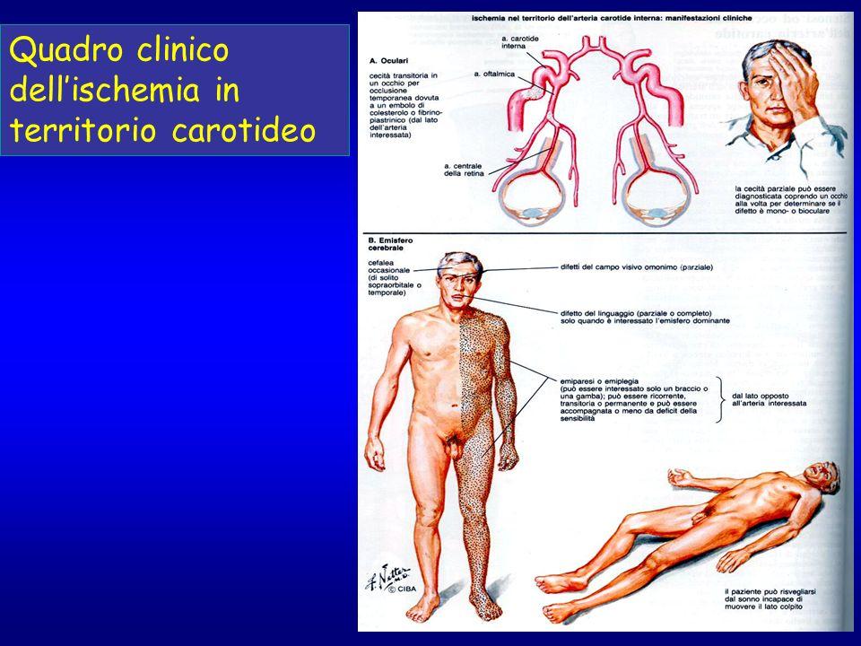 Quadro clinico dellischemia in territorio carotideo